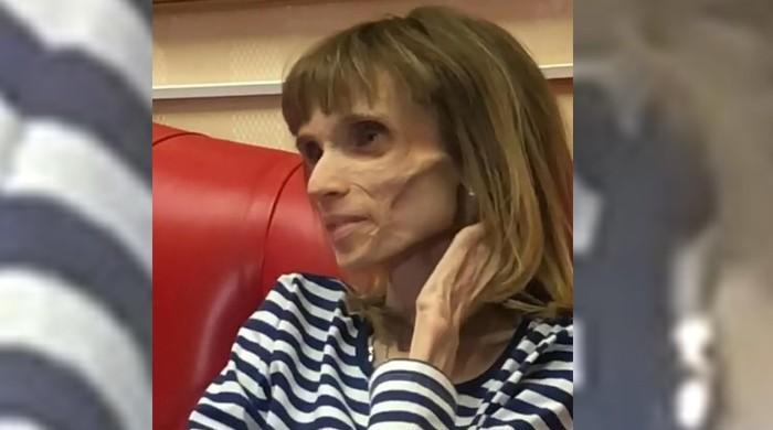 بھوک کا شکار 26 سالہ روسی لڑکی کا وزن صرف 17 کلو