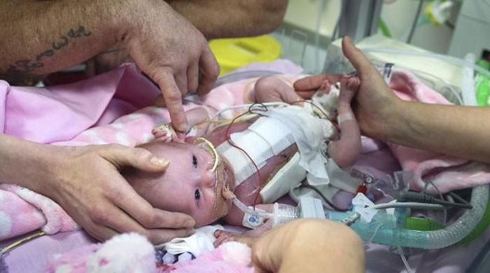 برطانیہ میں کامیاب آپریشن، بچی کا دل جسم میں منتقل