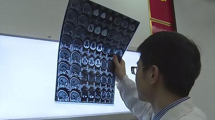 چینی شخص کے دماغ میں کیچوے کے 30 انڈے دیکھ کر ڈاکٹرز حیران