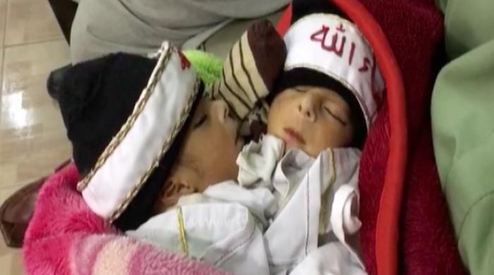 سوات میں دھڑ جڑے بچوں کی پیدائش، والدین علاج کیلئے پریشان
