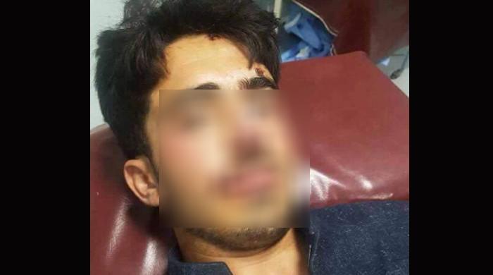 اپر کرم میں پاگل کتوں نے حملہ کرکے 18 افراد کو کاٹ لیا، 4 شدید زخمی پشاور منتقل