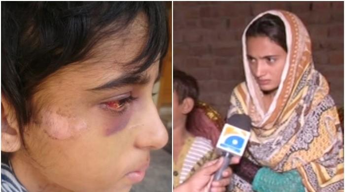 کمسن گھریلو ملازمہ پر تشدد کا مقدمہ درج،میڈیکل رپورٹ میں تشدد کی تصدیق ہوگئی