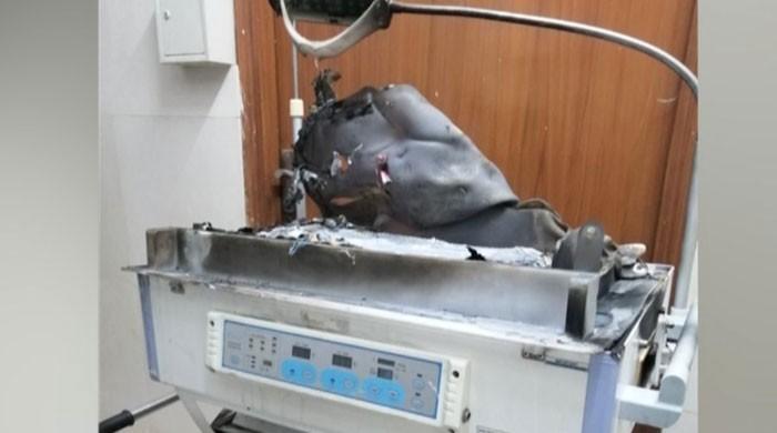 این آئی سی ایچ میں آگ لگنے سے بچی کی ہلاکت عملے کی غفلت کا نتیجہ قرار