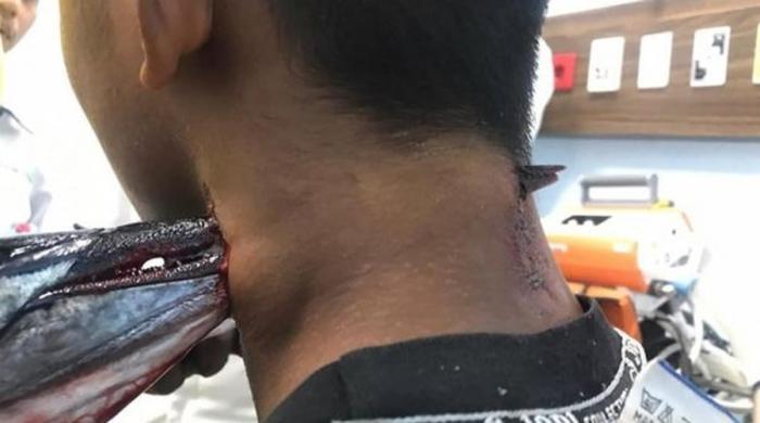 مچھلی کا نوجوان پر حملہ، گردن پھاڑ دی