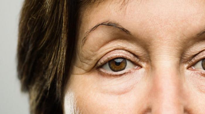 آنکھوں کے گِرد سوجن ختم کرنے کیلئے مفید غذائیں