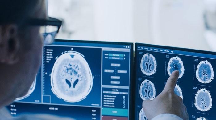 کورونا وائرس کے شکار افراد دماغی امراض میں بھی مبتلا ہو سکتے ہیں: تحقیق