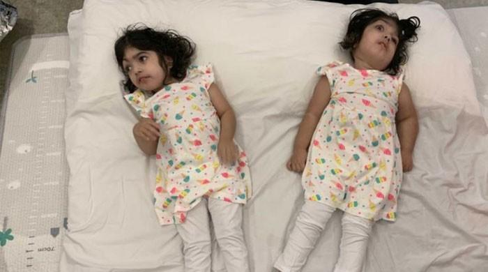 سر جڑی بہنوں کی کامیاب سرجری کے بعد پاکستان واپسی