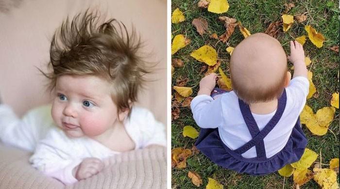 کچھ بچے کم اور کچھ بچے زیادہ بالوں کے ساتھ کیوں پیدا ہوتے ہیں؟