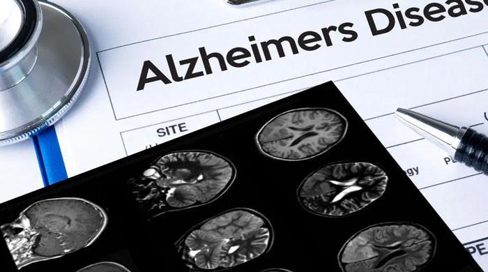 2003 کے بعد پہلی بار امریکا نے الزائمر کے علاج کیلئے نئی دوا کی منظوری دے دی