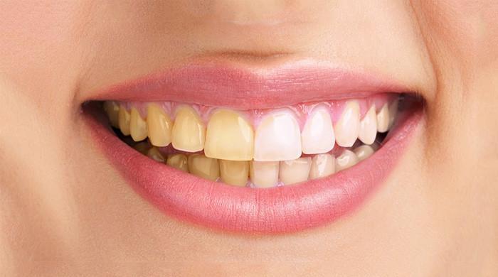 صاف چمکدار دانتوں کیلئے 3 آسان ٹوٹکے