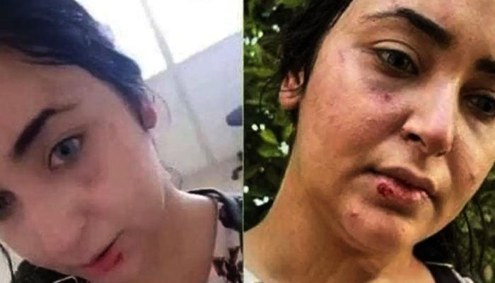 فارماسسٹ نے اپنی دیگر تصاویر بھی جاری کی ہیں جن میں ان پر جسمانی تشدد اور حملے کے نشانات واضح طور پر نظر آ رہے ہیں— فوٹو: سوشل میڈیا